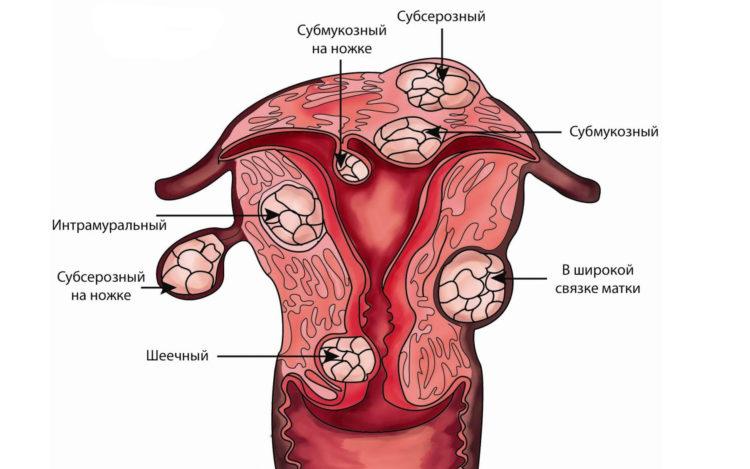 виды фибром матки