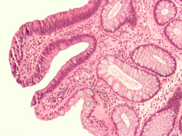 Аденома печени – симптомы, причины, осложнения, лечение