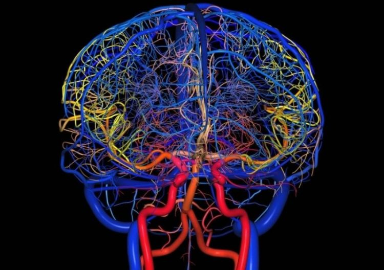 Ангиография мозга