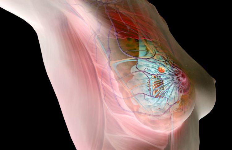 Болезнь груди