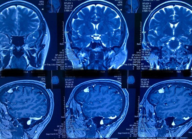 Основные принципы лечение менингиомы без операции