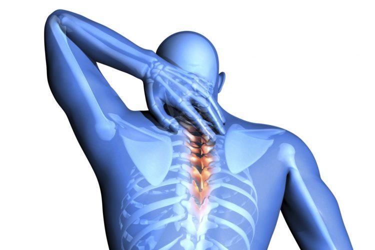 Менингиома спинного мозга