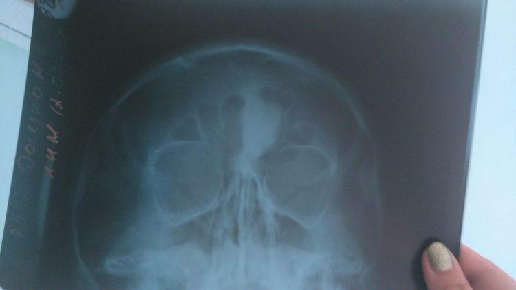 Остеома лобной кости на ренгене