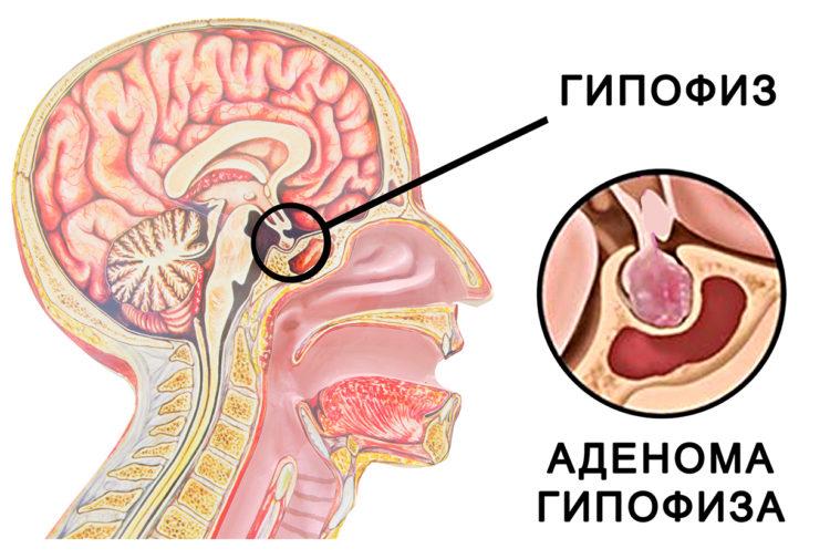 Заболевание гипофиза