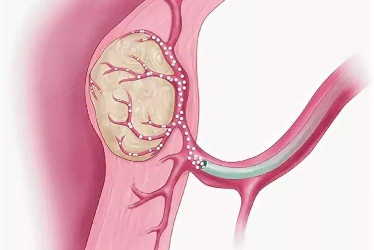 Эмболизация маточных артерий