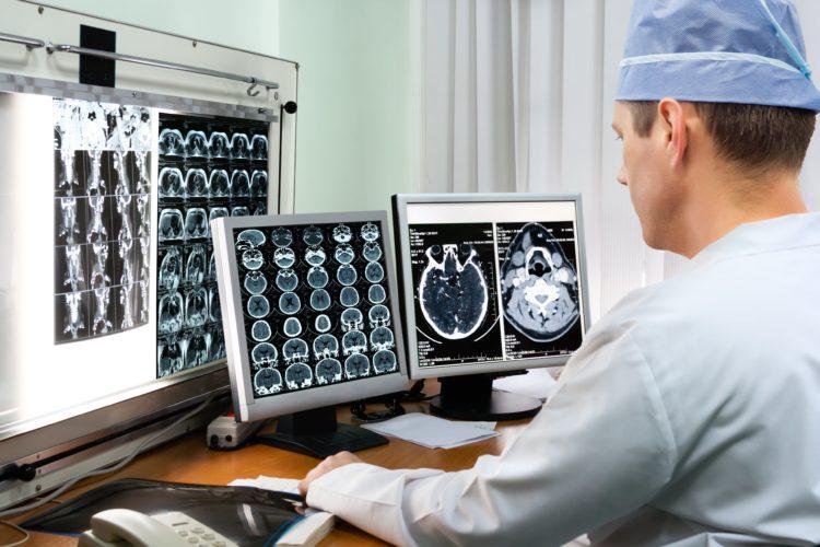 Лечение астроцитомы мозга