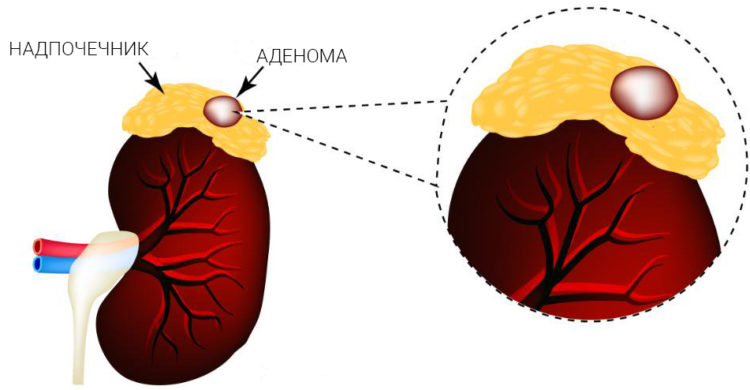 аденома надпочечника