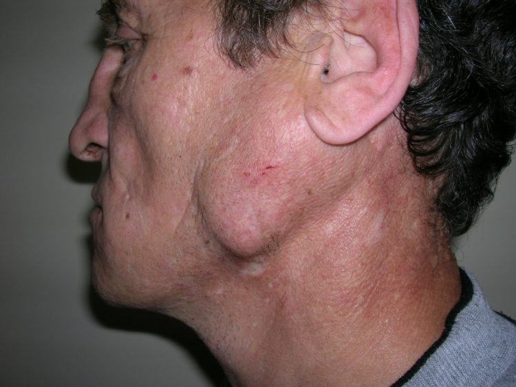 Симптомы аденомы слюнной железы и ее лечение