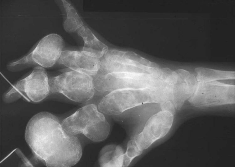 Хондросаркома кости