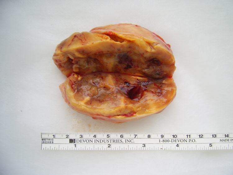 Миксоидная липосаркома