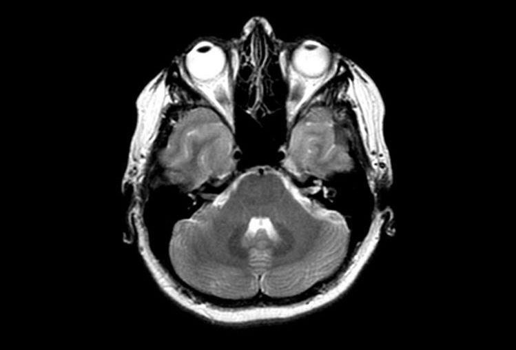 Невриномы головного мозга