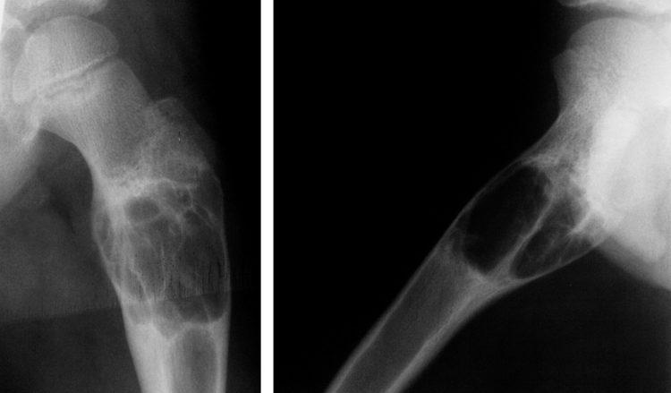 Остеома кости на рентгене