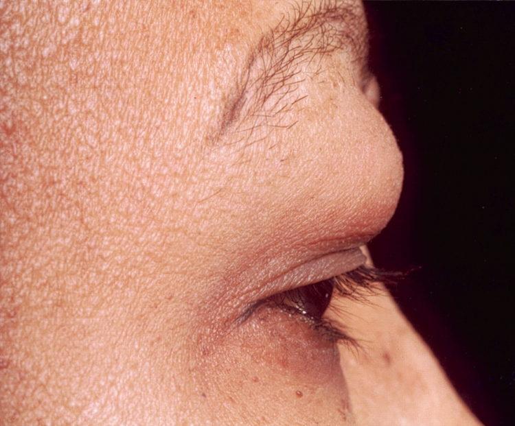 Выбухающая дерматофибросаркома