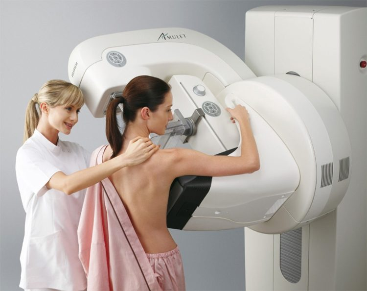 исслеование рака груди